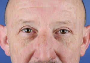 Ooglidcorrectie na de behandeling mannen - Mauritskliniek