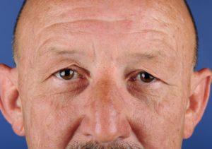 Oogleden voor ooglidcorrectie man - Mauritskliniek