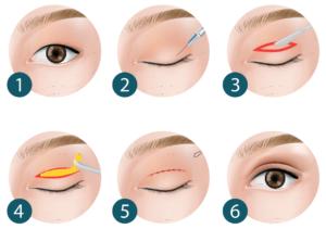 bovenooglidcorrectie in 6 stappen